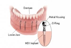 Mini Implants 300x202